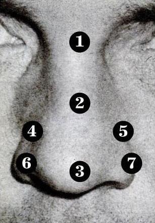 Акупунктура носа